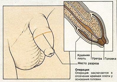 6f342d6e903f Обрезание — это хирургическая операция по удалению крайней плоти. В  отдельных случаях ее выполняют по медицинским показаниям, например, при  сужении крайней ...